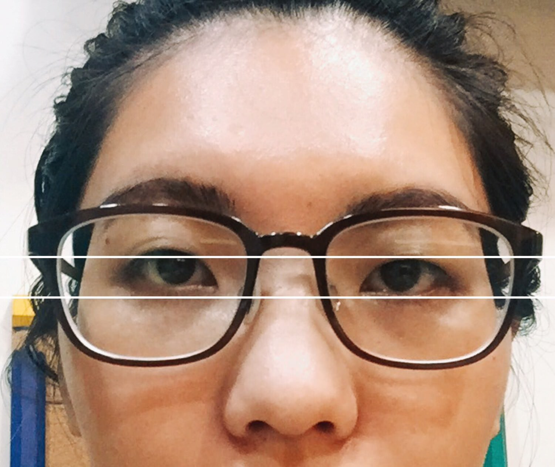 【醫美】儷人、愛惟美、極緻 三家雙眼皮諮詢心得分享